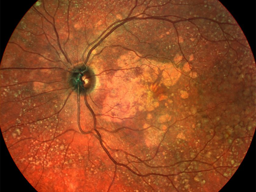 Gene therapy for age related macular degeneration