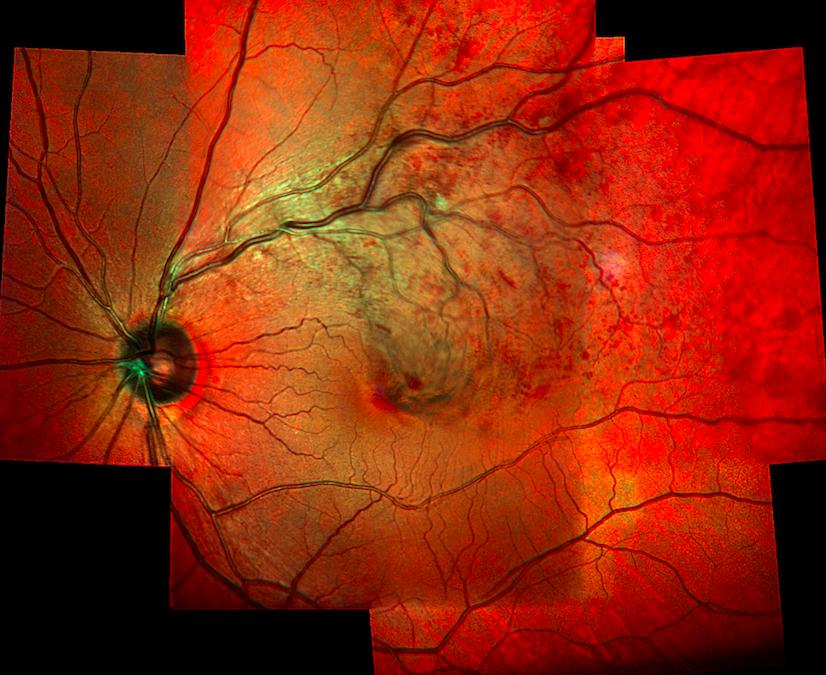 Medical Retina Clinic