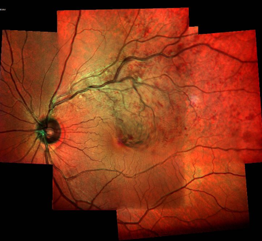 Anti-VEGF Tx Seems OK for Eye Disorders No increased risk of systemic adverse events with intravitreal anti-VEGF