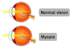 Myopia: A public health crisis in waiting