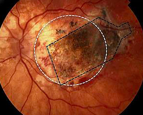 Stem cell implant stalls progression of dry AMD